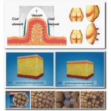 CoolShape kryolipolýza na chudnutie a odstránenie tuku
